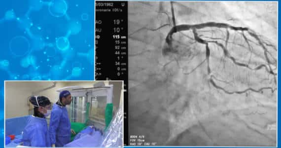 Live Case - Cathpax AIR - GISE- Dr Bernardo Cortese - Lemer Pax